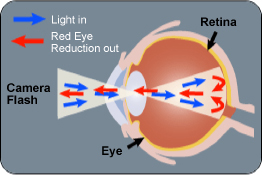 Camera Flash Red Eye diagram
